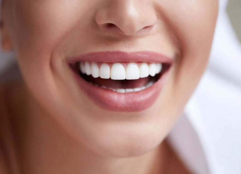Veneers Smile Makeover Kingston