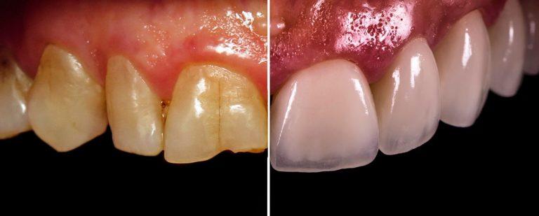 Dental Veneers Kingston Upon Thames
